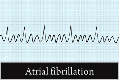 Electrocardiogram (EKG) indicating Atrial Fibrillation