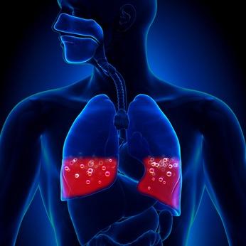 Pulmonary Edema means